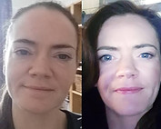 Juice Plus Reviews. My own before and after pictures